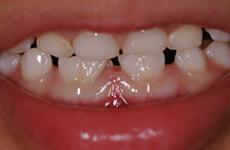 Services Kids Dental World